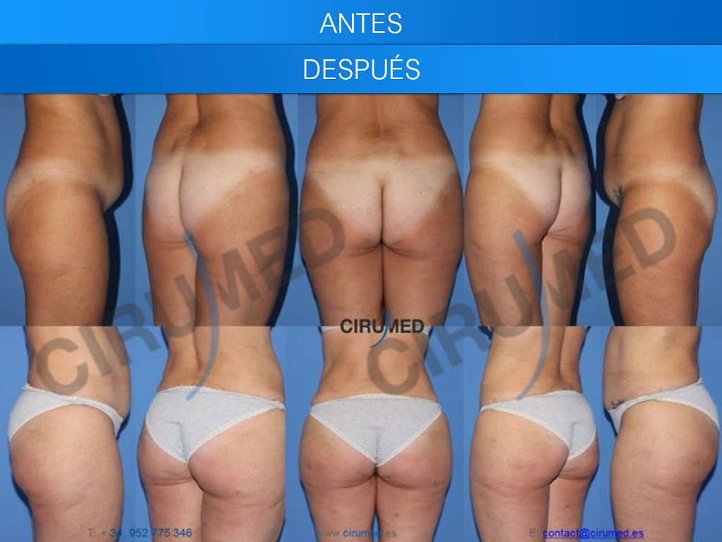 aumento brasileño de gluteos