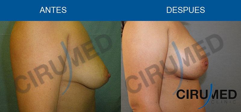 aumento de mamas grasa