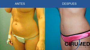 Abdominoplastia con liposucción Agua-Jet y lipolaser.