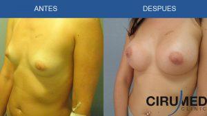 Aumento de mamas casos - con implantes de gel de silicona cohesivo