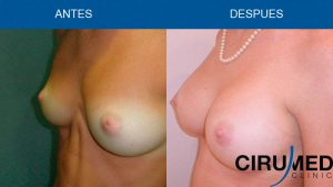 Aumento de mamas casos - con implantes de gel cohesivo