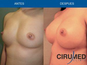 Aumento de mamas casos - con implantes de gel de silicona y transferencia adicional de microinjertos de grasa.
