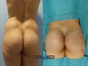 Aumento compuesto de glúteos con implantes y transferencia de grasa