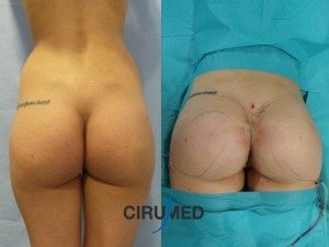 Remodelación corporal con liposucción y transferencia de grasa