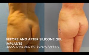 Aumento de glúteos con implantes más transferencia de grasa