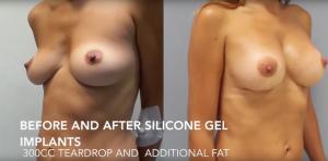 combinación de los implantes de silicona y la transferencia de grasa
