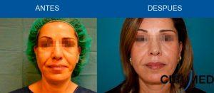 Lifting facial libre de cicatrices con micro-injertos de grasa