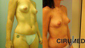 Liposucción con transferencia de grasa - tecnica jetstream lipocollector