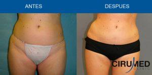 Liposucción Body Jet para lograr una máxima acentuación de la cintura.