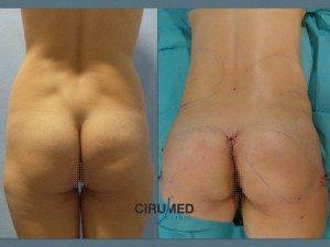 Aumento de glúteos con combinación de implantes y grasa