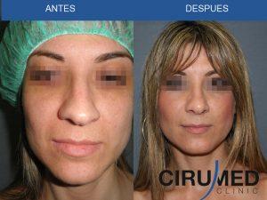 Rinoplastia cerrada (corrección de nariz)
