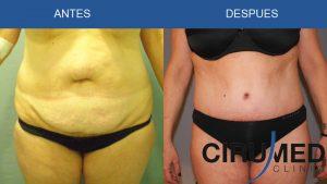Abdominoplastia combinado con BodyTite