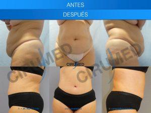 Abdominoplastia y liposucción combinadas para una remodelación total