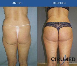 Aumento de glúteos brasileño 600cc en paciente de edad avanzada.