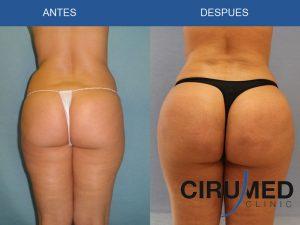 Aumento y remodelación del glúteos con propia grasa
