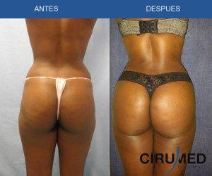 Aumento de glúteos brasileño-extracción de grasa para la remodelación de los glúteos.