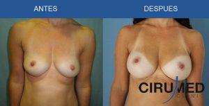 Aumento de mamas compuesto (grasa e implantes)