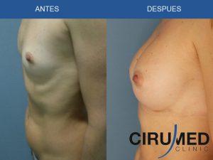 Aumento de mamas casos - con implantes de silicona tipo Natrelle