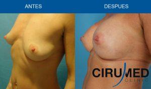 Aumento de mamas casos - compuesto