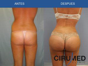 Aumento de glúteos con Lipoescultura Body Tite