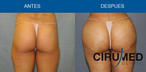 Remodelación de glúteos con propia grasa