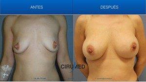 Aumento de mamas compuesto, combinación de implantes de gel de silicona