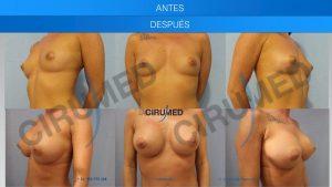 Cirugia de aumento de pecho con implantes y transferencia de grasa