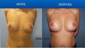 Aumento de senos híbridos con implantes anatómicos de 280cc e injerto de grasa
