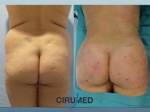 Transformación corporal con liposucción + Injerto de grasa