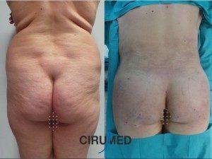 Remodelación corporal con injerto de grandes volumes de grasa en los glúteos