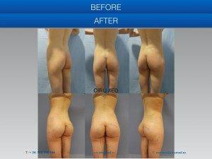 Aumento de glúteos con implantes más grasa en paciente muy delgada