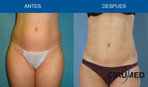 Combinación de Liposucción BodyJet con Lipolaser
