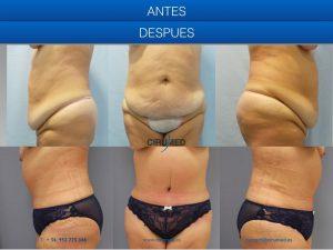 Remodelación corporal con abdominoplastia y liposucción