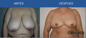 Reducción y levantamiento de mamas