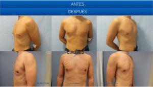 Soluciones minimamente invasivas para la ginecomastia