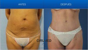 Abdominoplastia junto con histerectomía