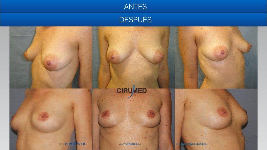 Mastopexia y levantamiento del pecho con cicatriz vertical