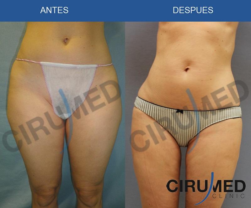 liposucción con transferencia de grasa
