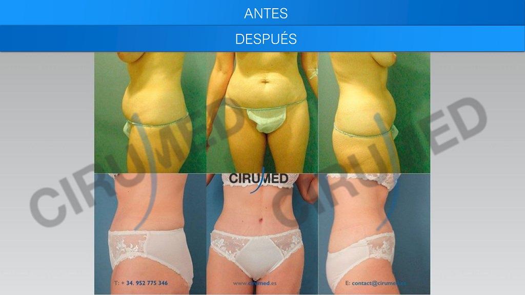 abdominoplastia total corrección de hernias umbilicales