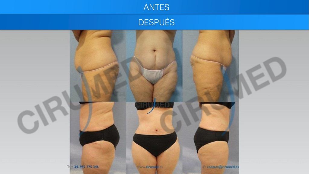abdominoplastia y liposucción BodyJet para los flancos