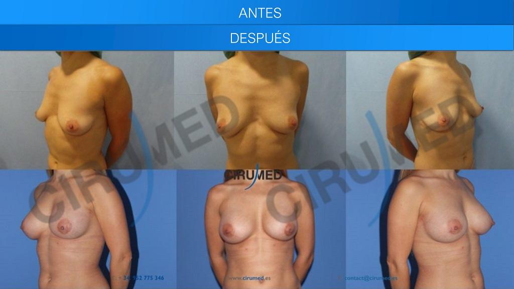 aumento de pechos con lipotransferencia e implantes de gel