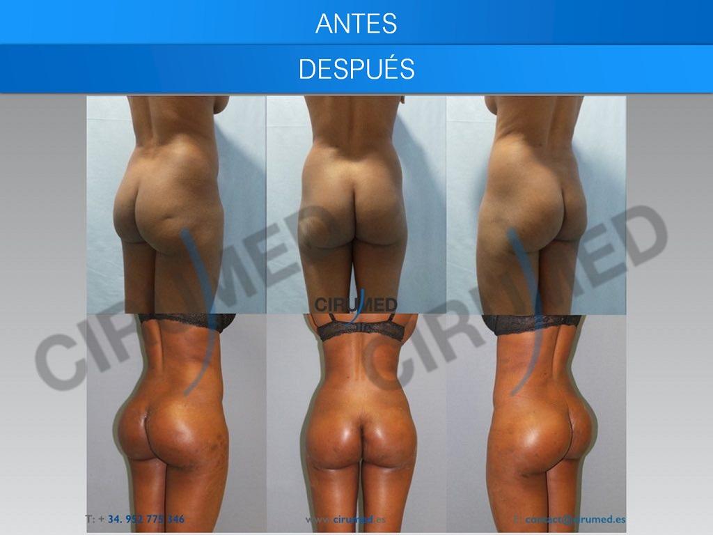 Aumento de glúteo con implante y lipotransferencia