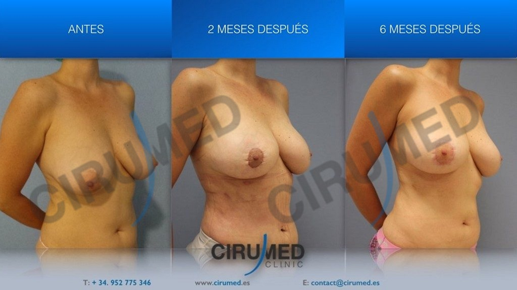 liposucción BodyJet Evo