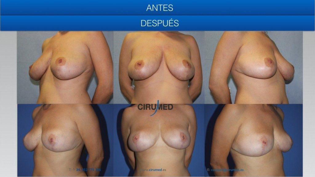 Combinación de implantes anatómicos con lipotransferencia. Mastopexia