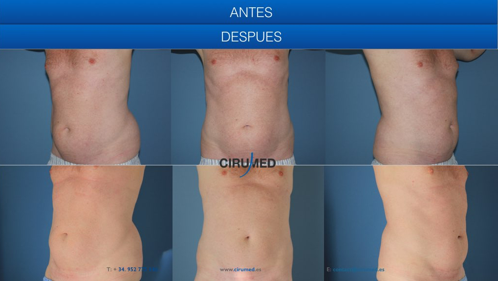 liposucción no quirúrgica, coolsculping