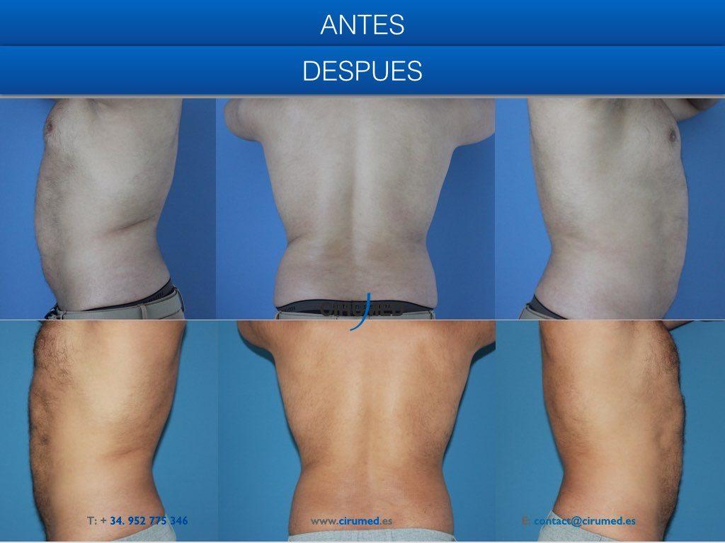 Coolsculpting liposucción sin cirugía