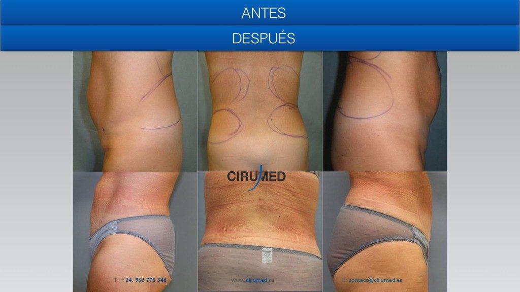 resultados de lipolaser, Body Tite, retracción de la piel