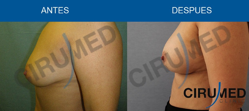 aumento de mamas sin implantes
