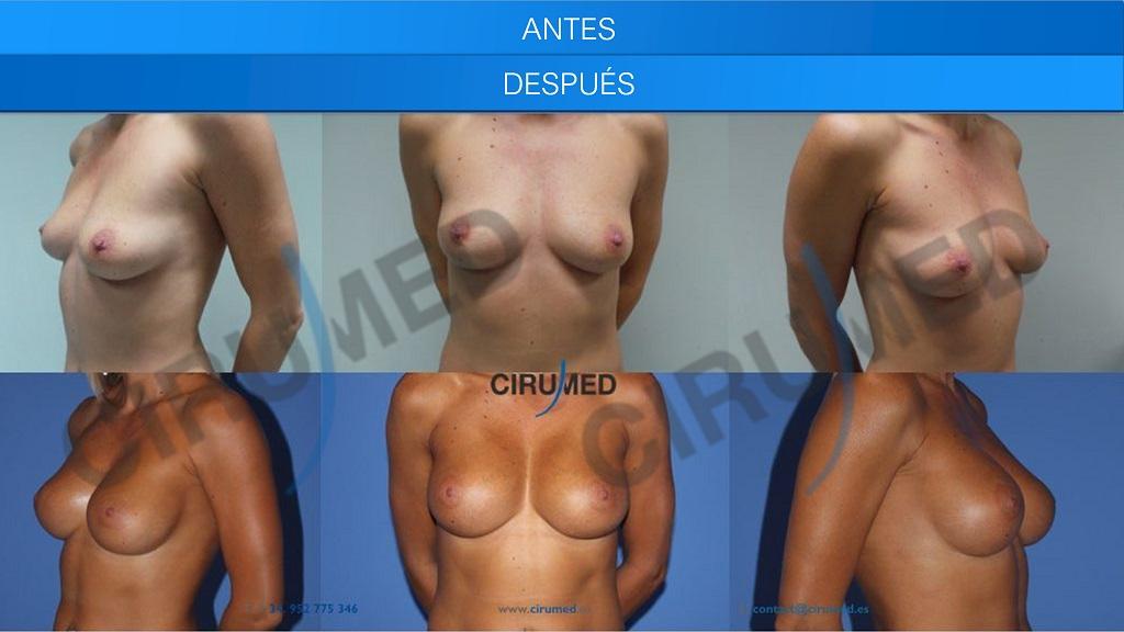 Aumento de senos con técnica hibrida (implantes de silicona combinado con lipotransferencia).