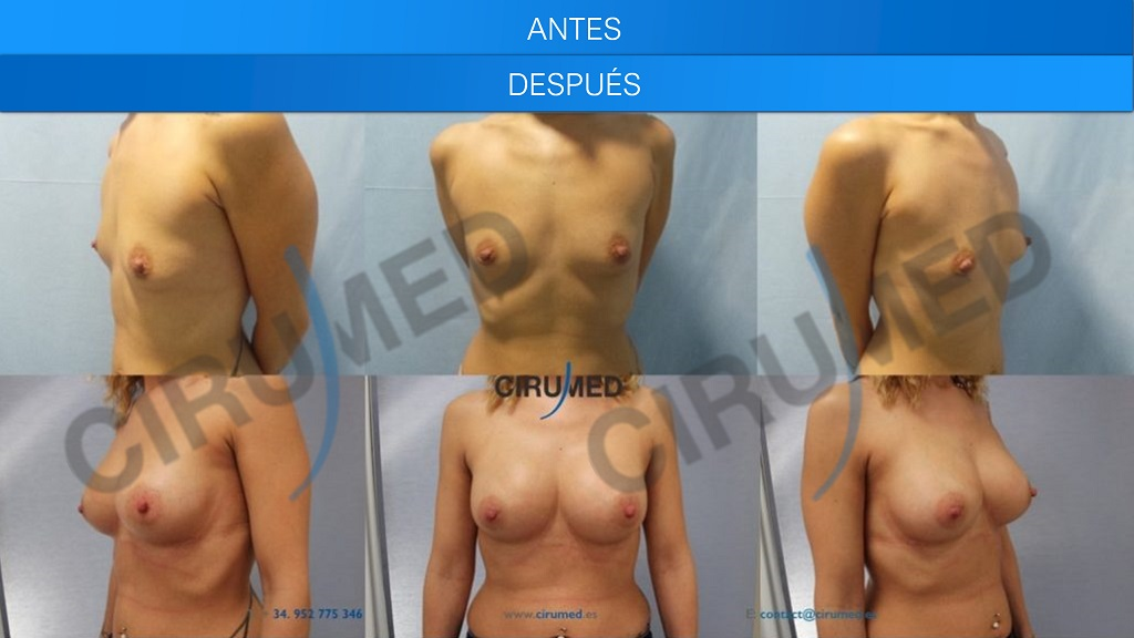 aumento de senos implante de silicona y lipotransferencia
